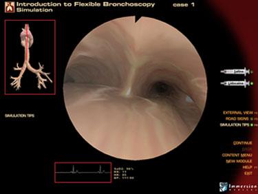 Pre-Op Endoscopy Simulator